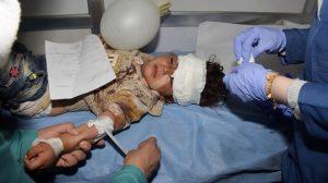 Verletztes Kind des Anschlags in Aleppo, Photo: SANA